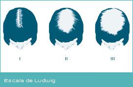 Las máscaras con el pimiento a la caída de los cabello