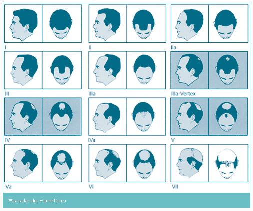 Escala de Hamilton - Alopecia masculina