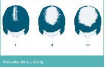 Escala de Ludwig - Alopecia femenina