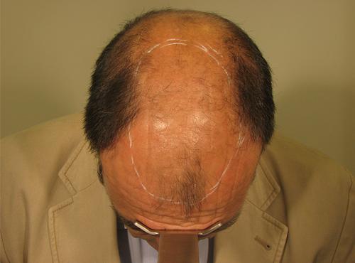 Hombre antes de realizarse un injerto capilar