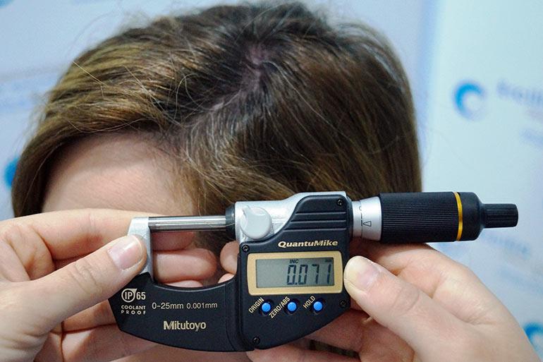 Terapia celular para alopecia - Comprobación del calibre del tallo piloso