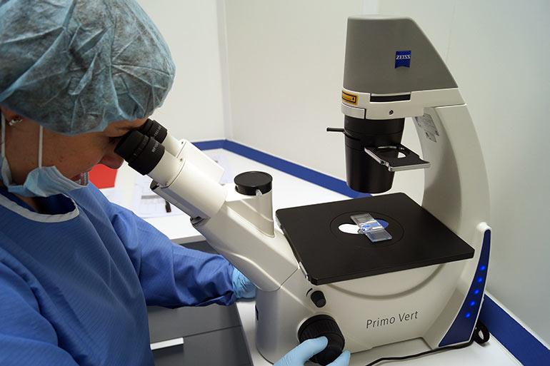 Terapia celular para alopecia - Valoración al microscopio