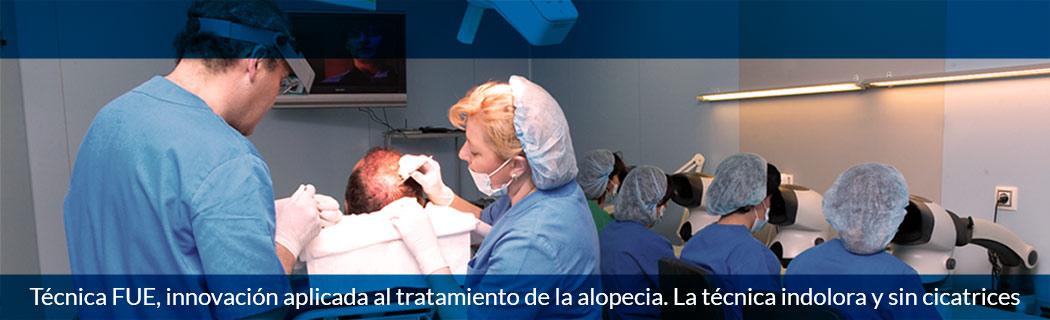 Técnica FUE, innovación aplicada al tratamiento de la alopecia. La técnica indolora y sin cicatrices
